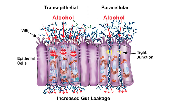 Graphic showing the intestinal barrier.
