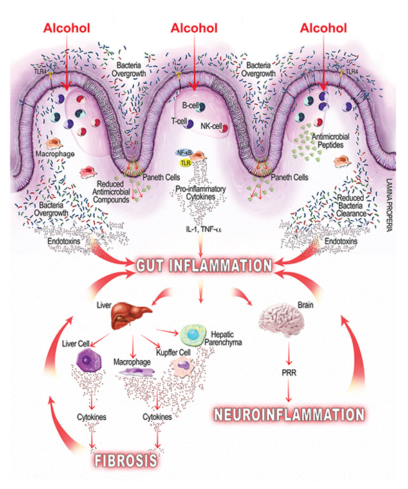 Graphic of alcohol inducing inflammation of the intestine; gut inflammation, neuroinflammation, fibrosis